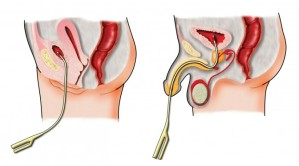 http://www.americannursetoday.com/reducing-catheter-associated-urinary-tract-infections/